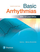 basic-arrhythmias-books